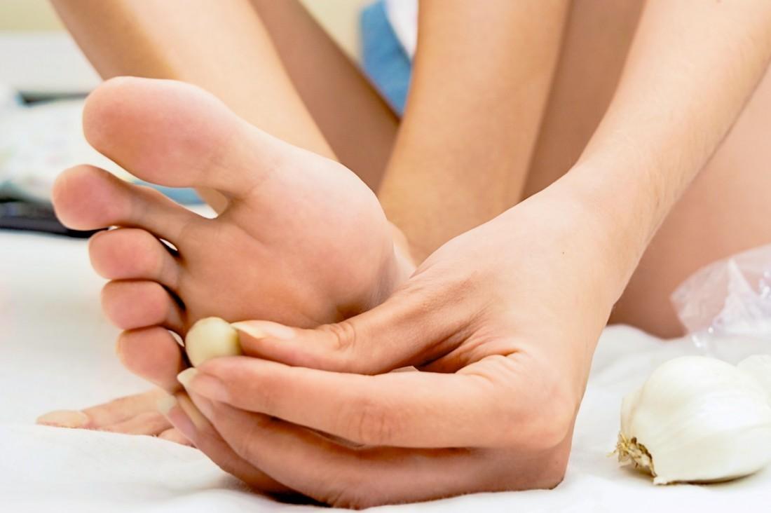 Eine Frau legt unter ihrer kleinen Fußzehe ein Stück Knoblauch auf ihre Fußsohle auf.